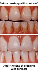 Zahnverfärbung Durch Tee Entfernen